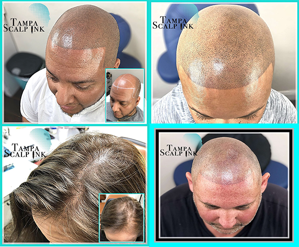 is hair loss genetic | Tampa Scalp Ink